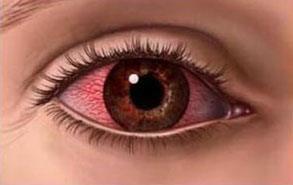 tørre øjne undgå det