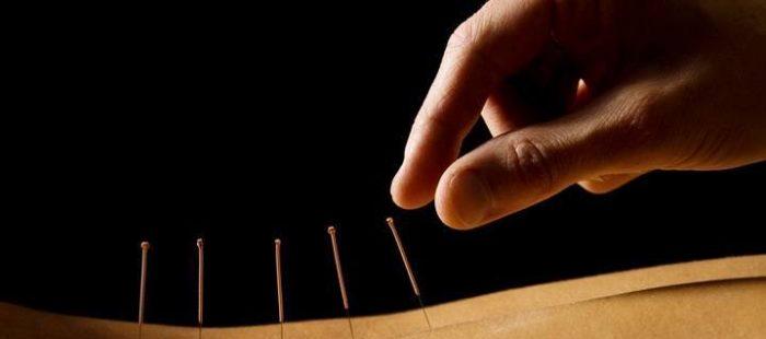 rygestop og akupunktur