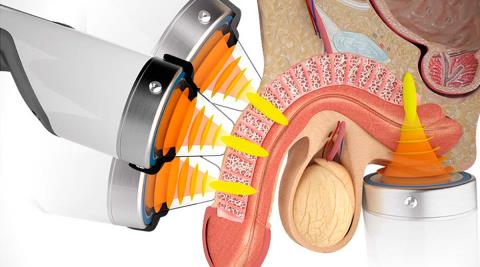 erektil-dysfunktion-ultralyd