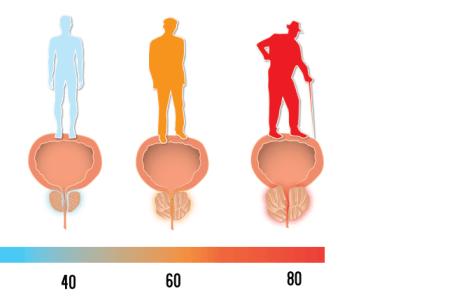 forstørret prostata