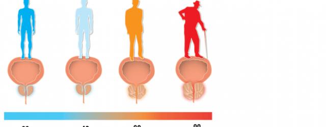forstørret prostata udløsning
