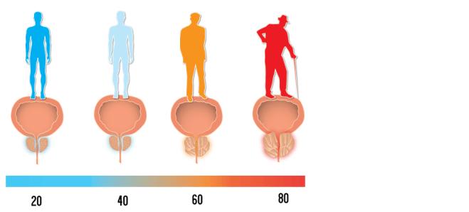 forstørret prostata potens