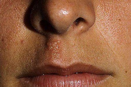 Forkølelsessår i næsen