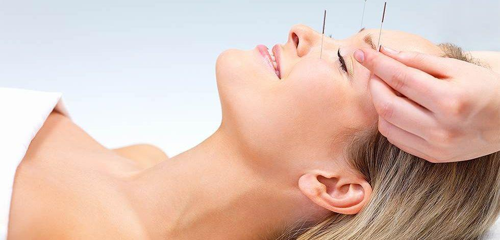 akupunktur og migræne
