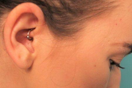 migraene piercing