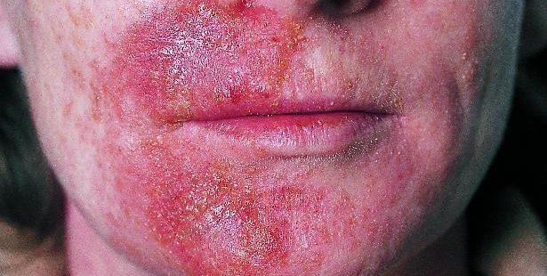 rødt udslæt i ansigtet