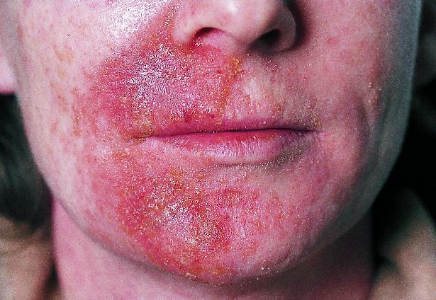 tør skællende hud i ansigtet