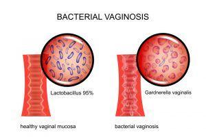 Bakteriel vaginose