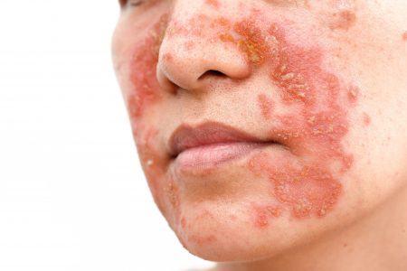 psoriasis ansigt