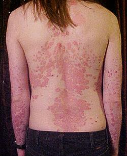psoriasis billede på ryggen