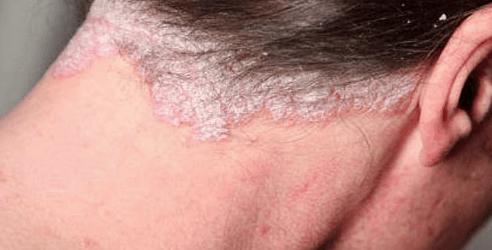 psoriasis i hovedbunden behandling