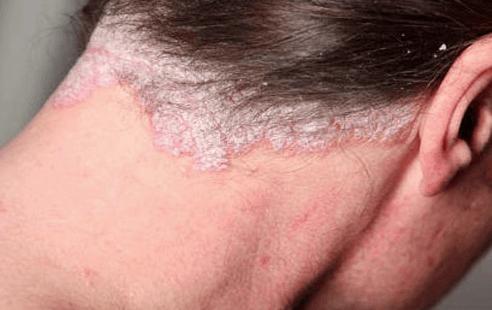 psoriasis i hovedbunden