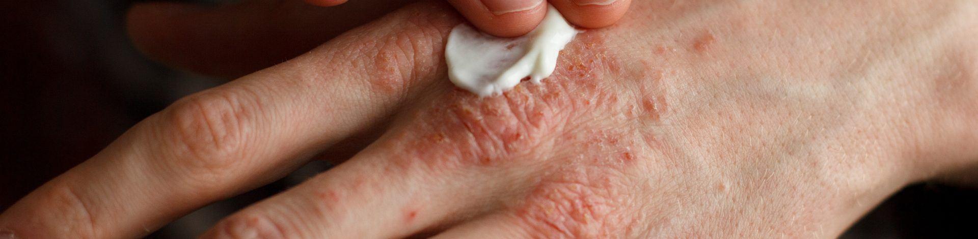 psoriasis lotion