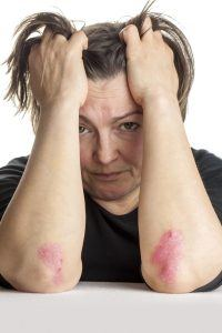 psoriasis i ansigt og på albuer