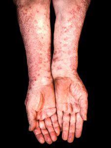 pustuløs psoriasis symptomer eksempel