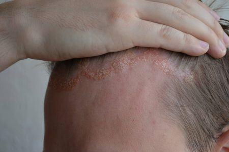 sår i hovedbunden