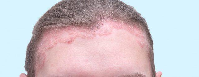 bar plet i hovedbunden