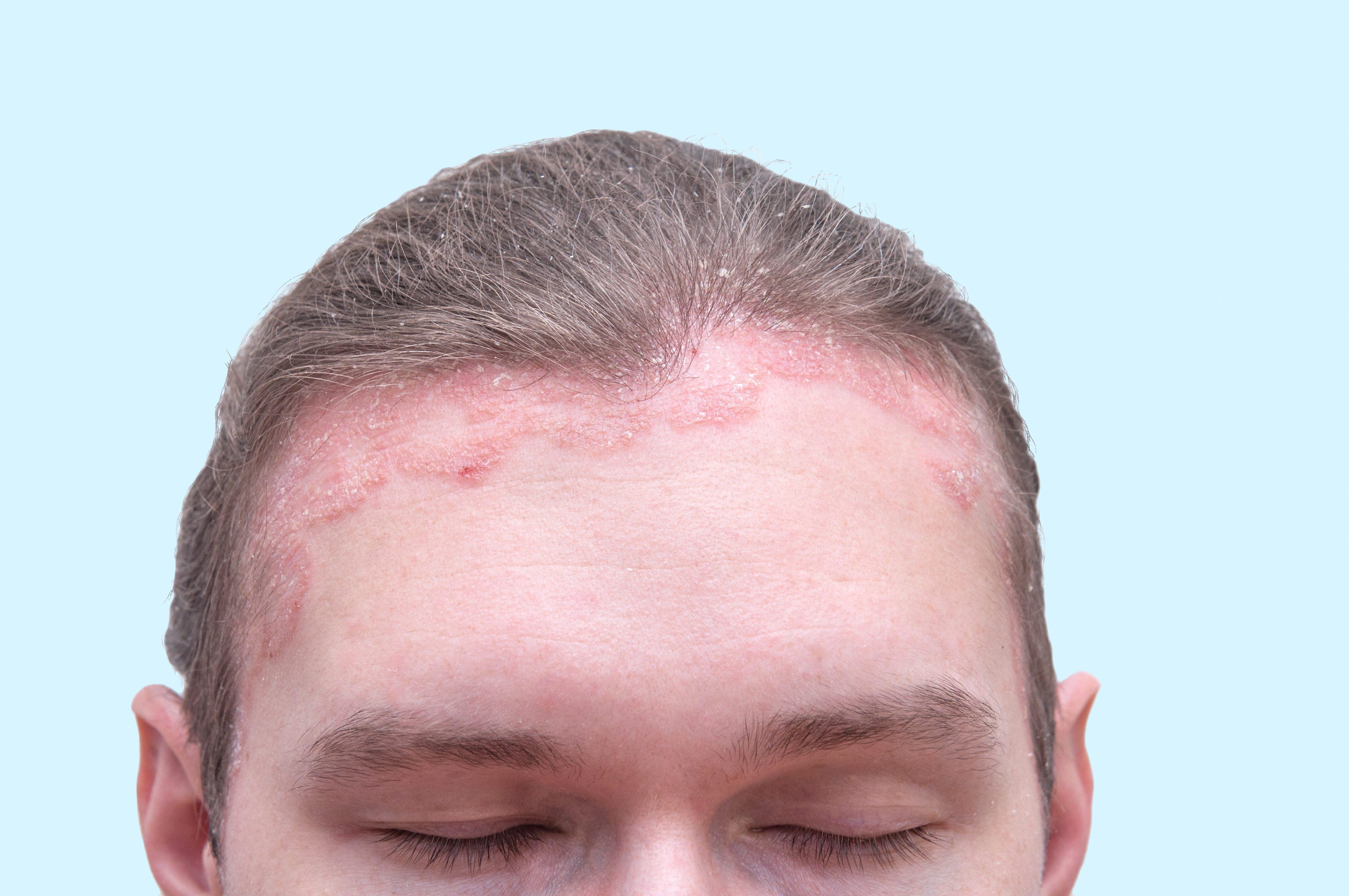 svamp i ansigtet