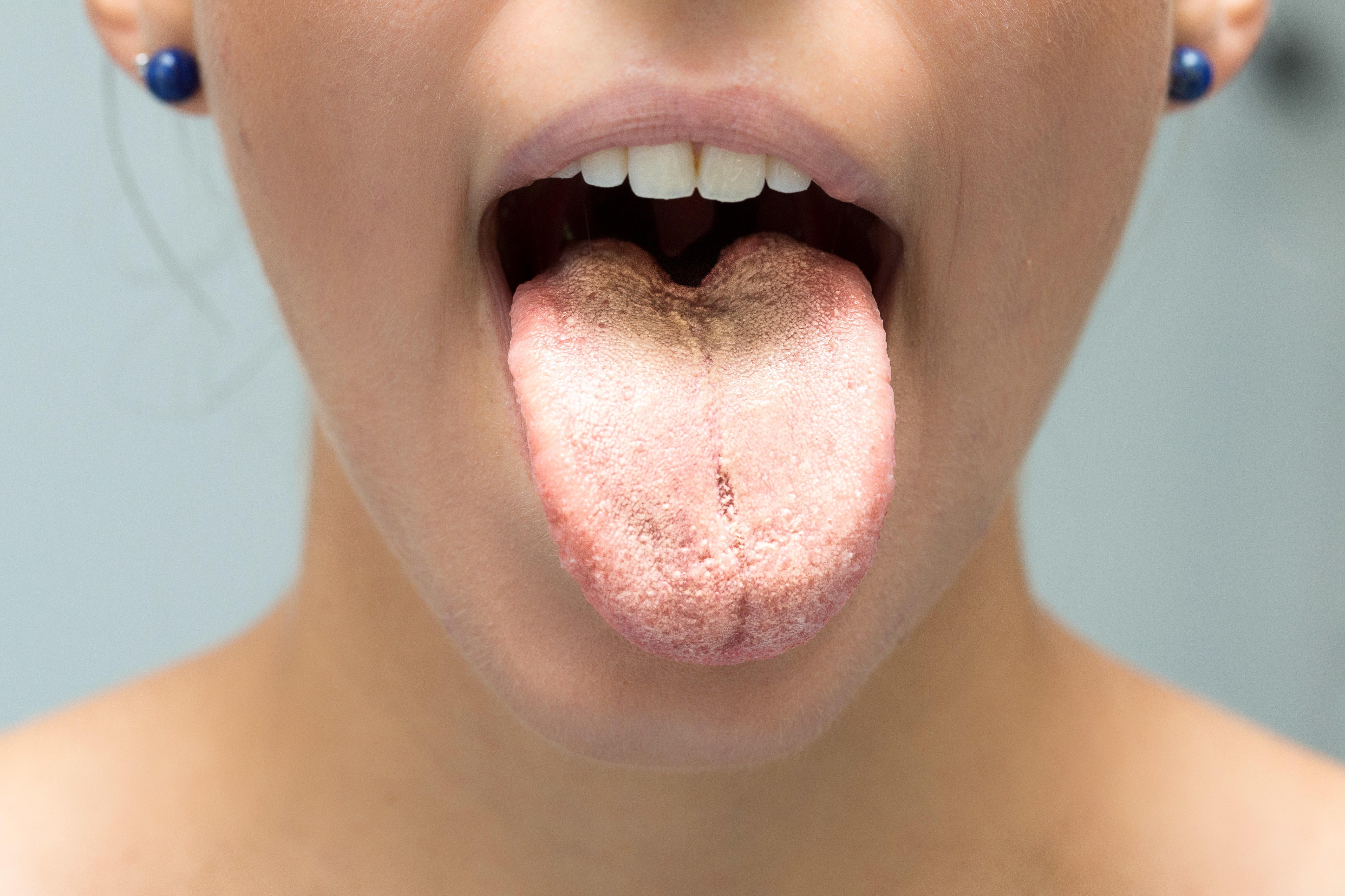 Candida svamp i munden