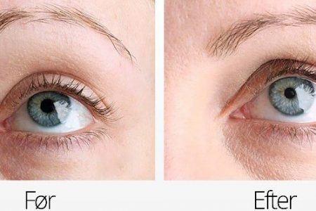 test af øjenvippe serum billede