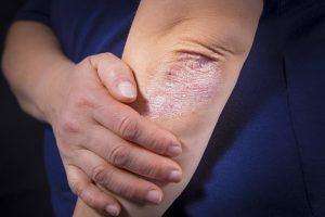 psoriasis udseende