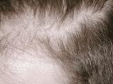 hårtransplantation til kvinder