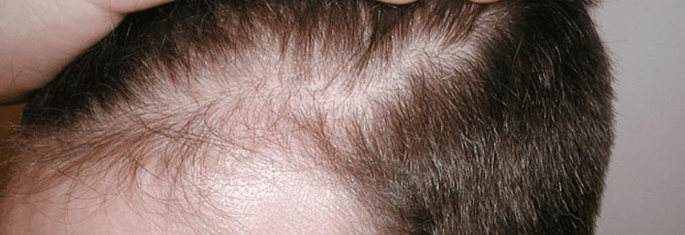 tyndt hår mænd